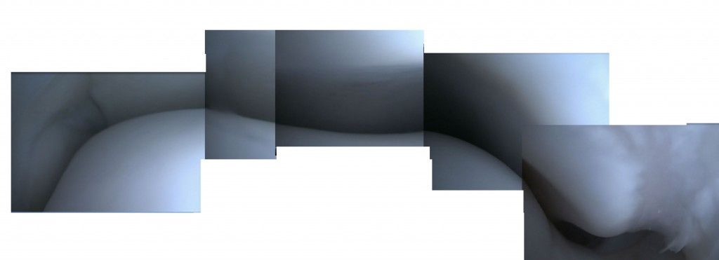 Beeld van het enkelgewricht via een achterste kijkoperatie (samengesteld uit meerdere beelden)