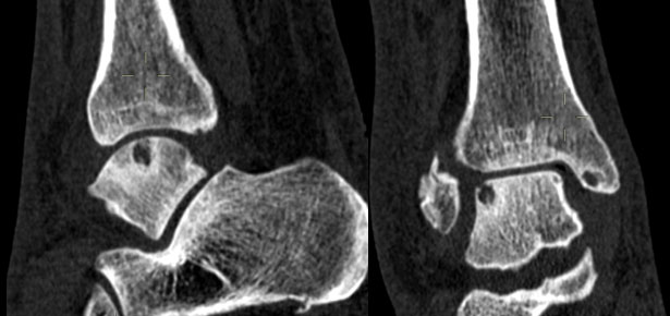 knie zonder kraakbeen
